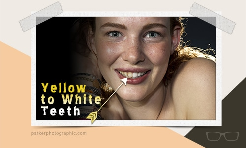 whiten teeth featured